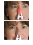 Rudolph Effect -Front- Verum (above) and Sham (below) treatment in an adult female subject under daylight illumination