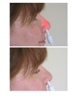 Rudolph Effect -Side- Verum (above) and Sham (below) treatment in an adult female subject under daylight illumination