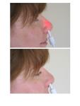 Rudolph Effect -Side- Verum (above) and Sham (below) treatment in an adult female subject under daylightillumination