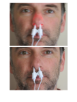 Rudolph Effect -Front- Verum (above) and Sham (below) treatment in an adult male subject under daylight illumination
