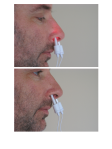 Rudolph Effect -Side- Verum (above) and Sham (below) treatment in an adult male subject under daylight illumination