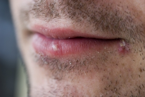 bigstockphoto_cold_sores_herpes_labialis__3836923